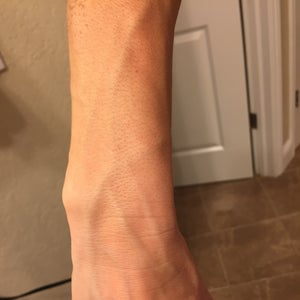 Why do my veins pop out on my arms