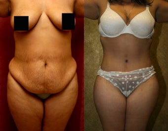 tummy tuck or abdominoplasty with liposuction before 948689