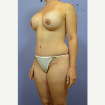 25-34 year old woman treated with Mommy Makeover after 3421626
