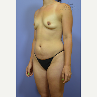 25-34 year old woman treated with Mommy Makeover before 3421626