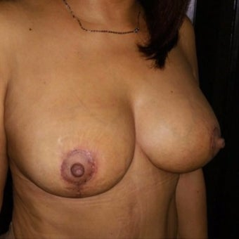 35-44 year old woman treated with Breast Lift after 3355246