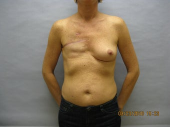 48 year old woman with breast reconstruction before 1016314