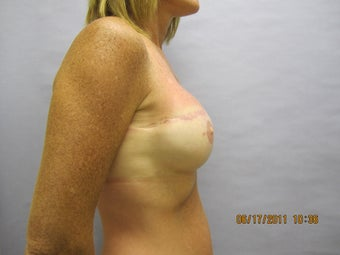 48 year old woman with breast reconstruction 1016314