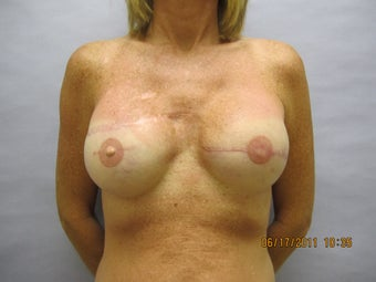 48 year old woman with breast reconstruction after 1016314