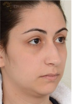 18-24 year old woman treated with Rhinoplasty before 3258719