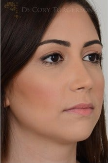18-24 year old woman treated with Rhinoplasty after 3258719