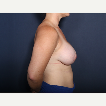 25-34 year old woman treated with Breast Lift with Implants (view 2 of 2) after 3406882