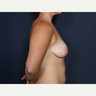 25-34 year old woman treated with Breast Lift with Implants (view 2 of 2) before 3406882