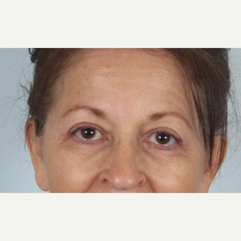 55-64 year old woman treated with  upper and lower eyelid surgery and eye bag removal after 3520401
