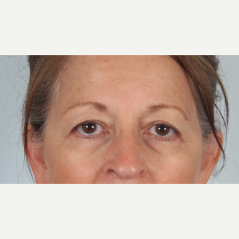 55-64 year old woman treated with  upper and lower eyelid surgery and eye bag removal before 3520401