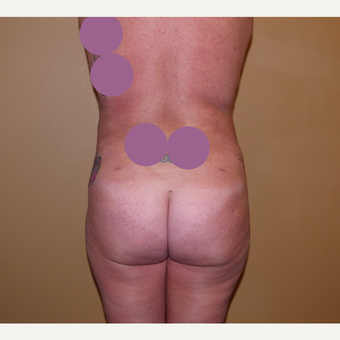 Liposuction after 3807159