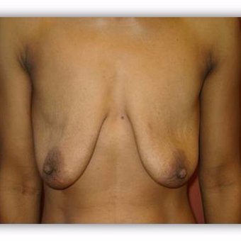 25-34 year old woman treated with Breast Lift before 2975379