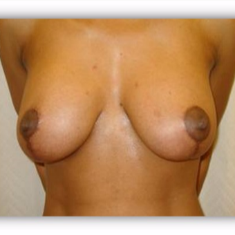 25-34 year old woman treated with Breast Lift after 2975379