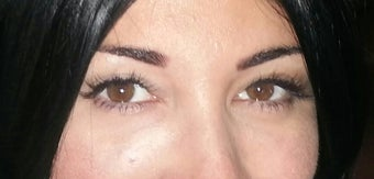 Under eye fillers- 30 yo female after 1383284