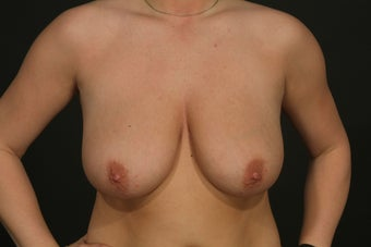Breast Reduction before 287711