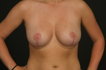 Breast Reduction after 287711
