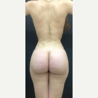 25-34 year old woman treated with Brazilian Butt Lift after 3747168