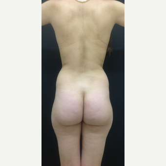 25-34 year old woman treated with Brazilian Butt Lift before 3747168