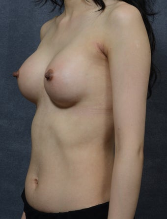 26 Year Old Female with Breast Augmentation  1472757