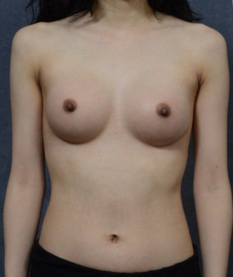 26 Year Old Female with Breast Augmentation  after 1472757