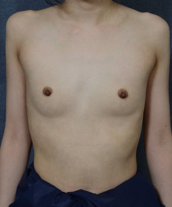 26 Year Old Female with Breast Augmentation  before 1472757