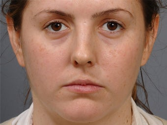 24 year old woman glamorised with Cheek augmentation and tarsal fixation upper lid blepharoplasty before 1260207