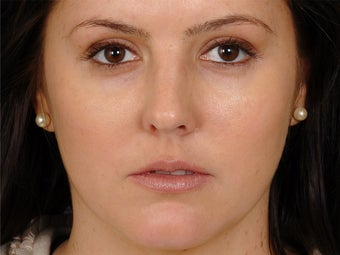 24 year old woman glamorised with Cheek augmentation and tarsal fixation upper lid blepharoplasty after 1260207