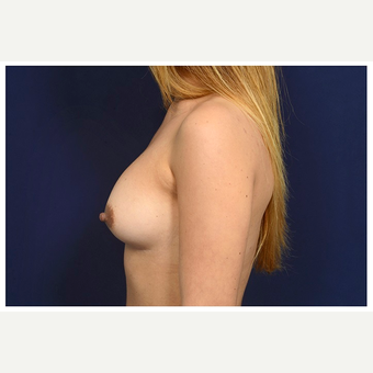 25-34 year old woman treated with Sientra Breast Implants before 3383396