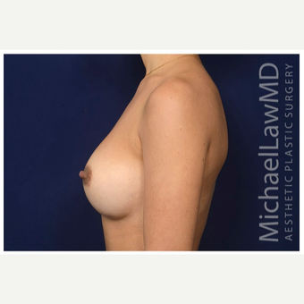 25-34 year old woman treated with Sientra Breast Implants after 3383396
