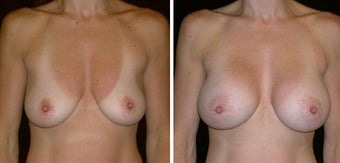 40 year old female, breast augmentation before 628408