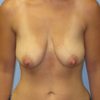 25-34 year old woman treated with Breast Augmentation before 3400553