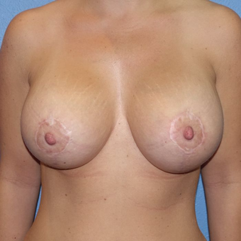 25-34 year old woman treated with Breast Augmentation after 3400553