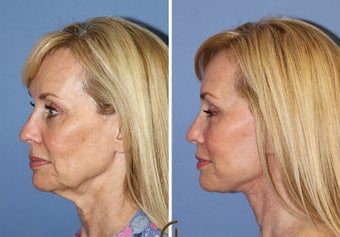 Lower Face and Neck Lift without General Anesthesia  1344081