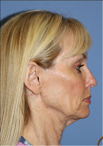 Lower Face and Neck Lift without General Anesthesia  before 1344081