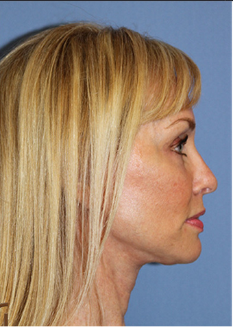 Lower Face and Neck Lift without General Anesthesia  after 1344081