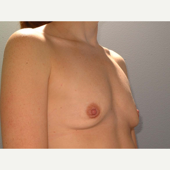 35 y/o Dual Plane Breast Augmentation before 3065874