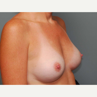 35 y/o Dual Plane Breast Augmentation after 3065874