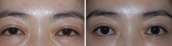 Before and after Asian Blepharoplasty with Arcus Release and Fat Grafting