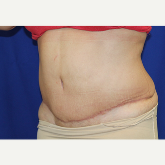 25-34 year old woman treated with Tummy Tuck after 3306476