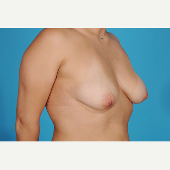 45-54 year old woman treated with Breast Lift with Implants before 3777205