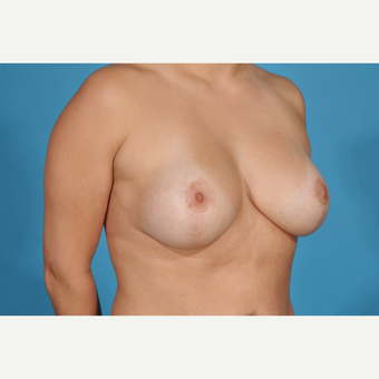 45-54 year old woman treated with Breast Lift with Implants after 3777205