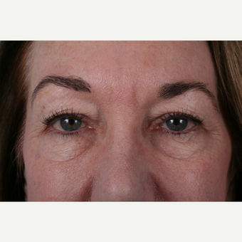 55-64 year old woman treated with Eyelid Surgery before 3055365