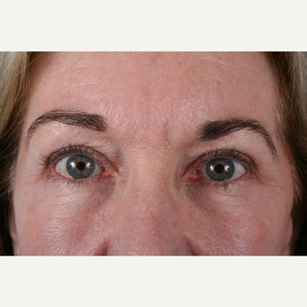 55-64 year old woman treated with Eyelid Surgery after 3055365