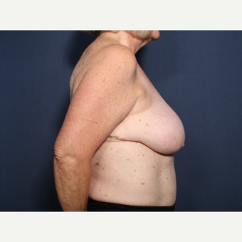 65-74 year old woman treated with Breast Reduction (view 2 of 2) before 3566215