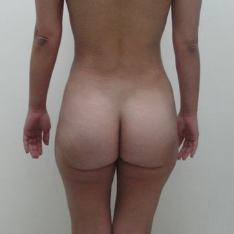 25-34 year old woman treated with Brazilian Butt Lift after 1784260
