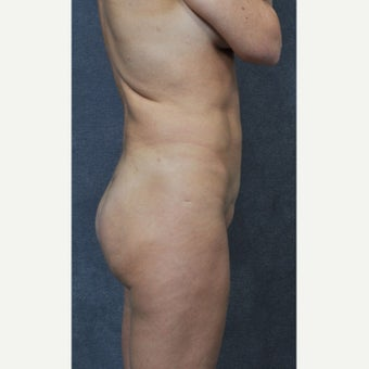 35-44 year old woman treated with Butt Implants after 2030646