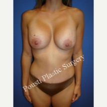 35-44 year old woman treated with Breast Lift with Implants after 3765066
