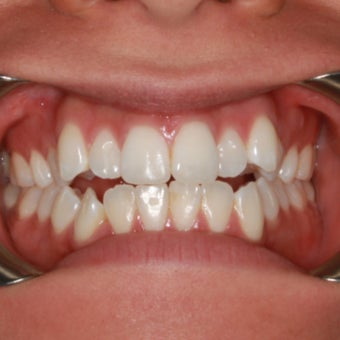 27 Year Old Female Clear Braces before 1305072