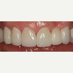 55-64 year old woman treated with Dental Crowns and Bridge after 1733709