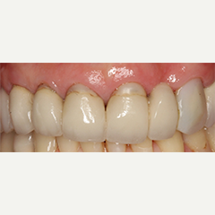 55-64 year old woman treated with Dental Crowns and Bridge before 1733709